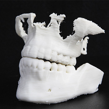 3D printer dental model