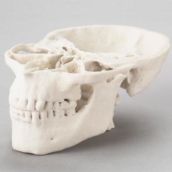 3D prototip kafatası